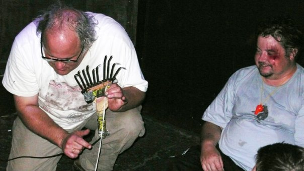 Steve McCabe puts on a brave face after standing on Eugene's rake - Dr Chad tries to make amends for tying his shoelaces together by playing him a song on one of them.